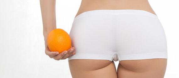 cellulite-behandlung-wien